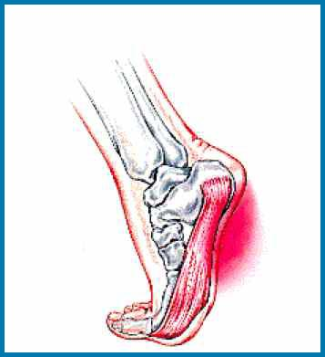 Plantar Fasciitis Foot Health Galway Podiatry Veruccaes