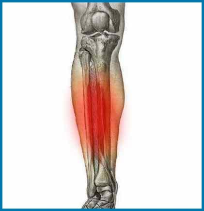 Shin Splints Foot Health Galway Podiatry Veruccaes Ingrowing